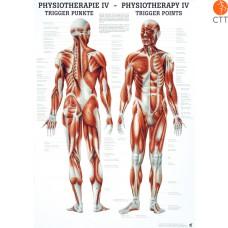 Poster Physiotherapie IV - DIE TRIGGER PUNKTE, 50 x 70cm, deutsch und englisch, Papier mit feinen Metalleisten