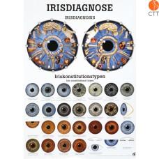 Poster IRIS-Diagnose, 50 x 70cm